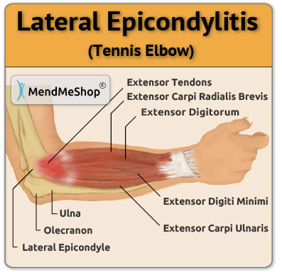 tennis elbow anatomical image