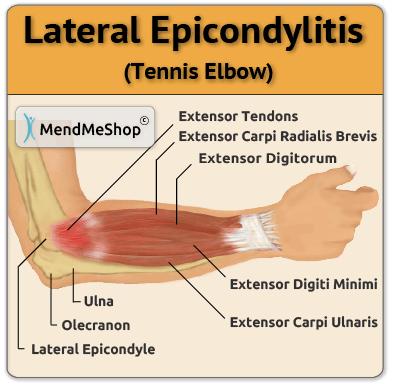 Lateral Epicondylitis aka Tennis Elbow