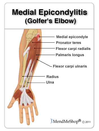golfer elbow anatomical image