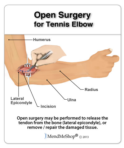 Open Surgery for Tennis Elbow