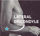 Lateral epicondyle, olecranon photograph man