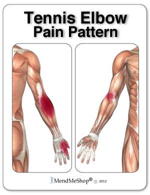 Tennis Elbow, Wrist, Forearm pain pattern