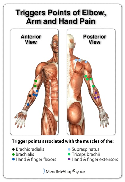 arm trigger points