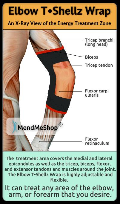 Elbow TShellz Wrap Elbow Tendinitis
